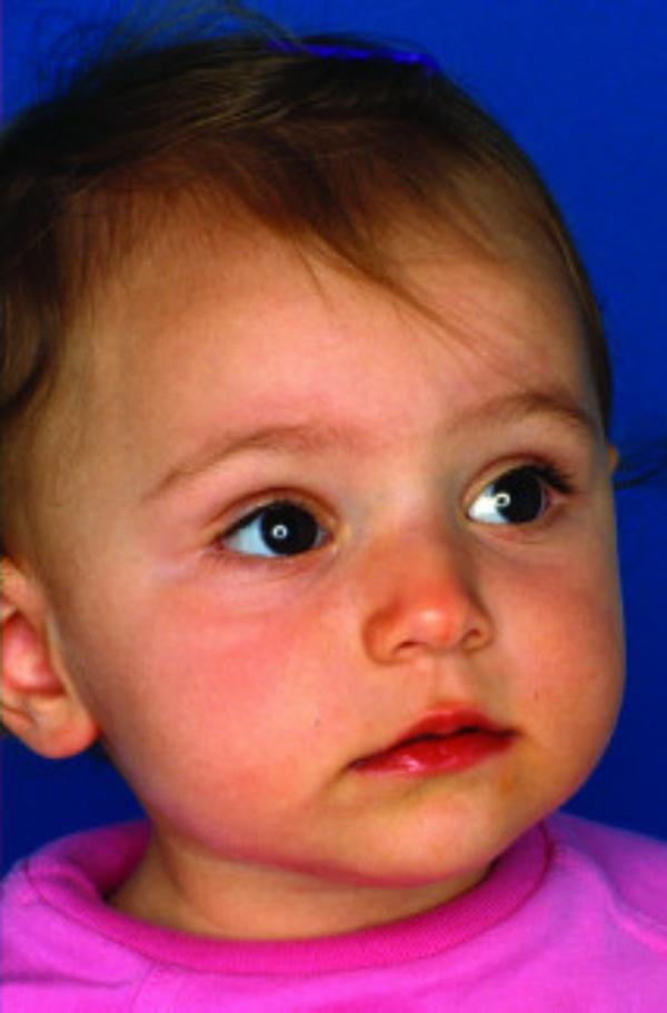 Bé gái 1 tuổi có làn da tiêu biểu của làn da khỏe