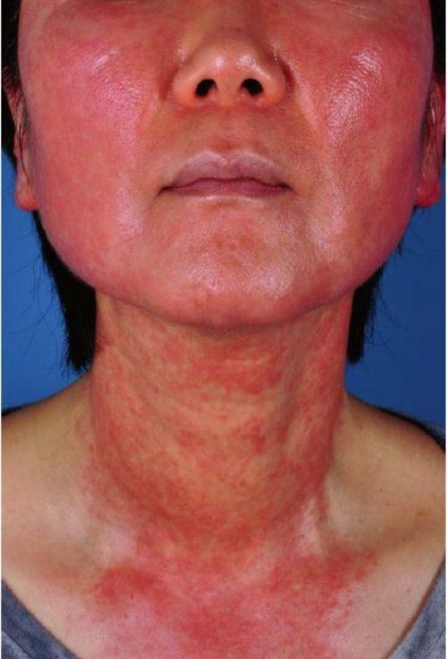 Hình 2.8 Một bệnh nhân sử dụng mức độ điều trị trung bình tới mạnh để đạt được Skin Health Restoration ở da mặt và cổ của cô ấy.