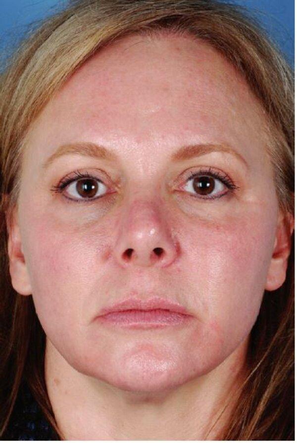 Hình 4.5: Bệnh nhân với loại da trắng lệch màu(trắng sáng)