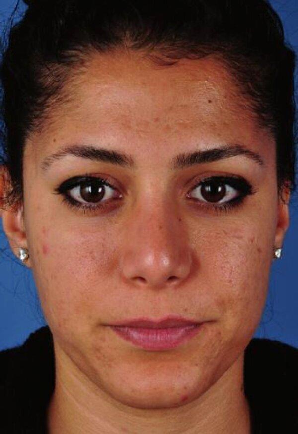 Hình 4.6:Bệnh nhân với loại da trắng lệch màu (trắng sẫm)
