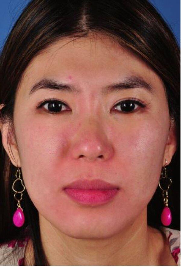 Hình 4.7:Bệnh nhân với loại da châu Á lệch màu(sáng)