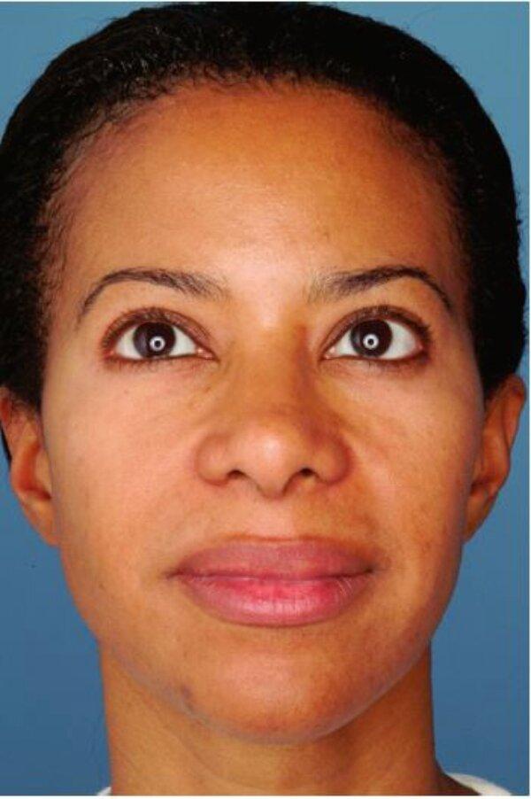 Hình 4.9:Bệnh nhân với loại da đen lệch màu(sáng)