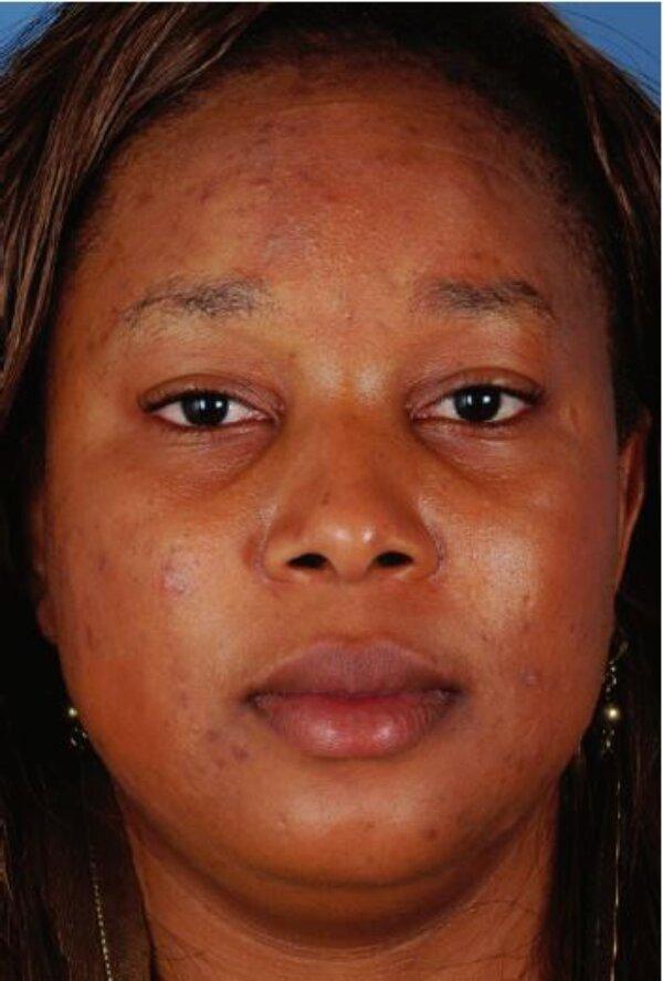 Hình 4.10:Bệnh nhân với loại da đen lệch màu(trung bình)