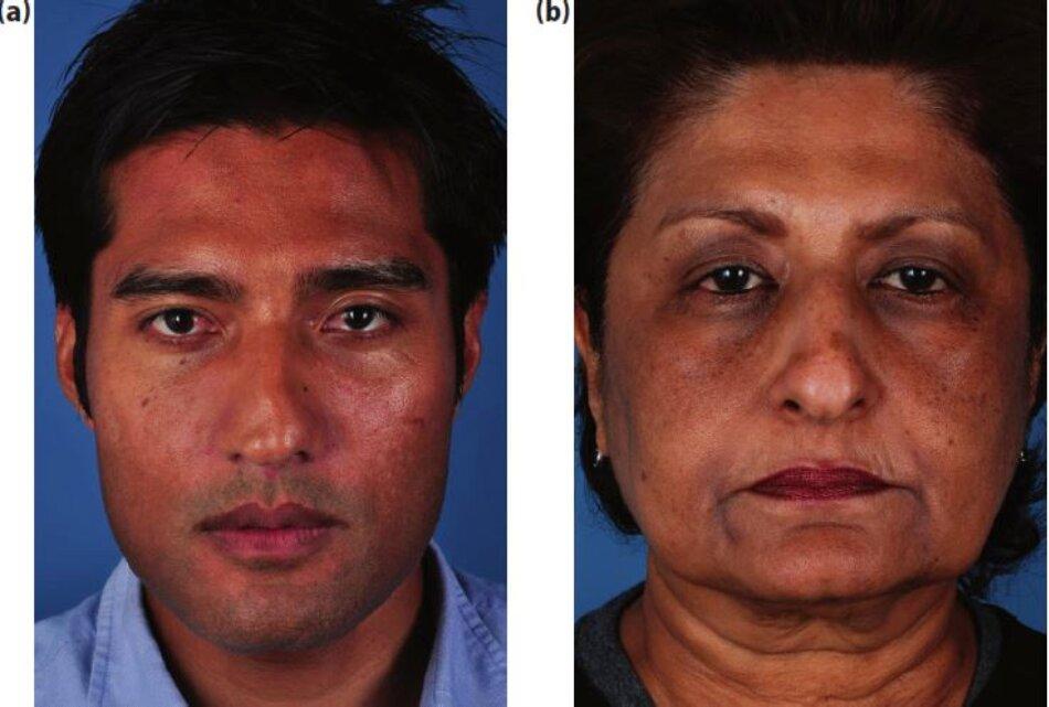 Hình 4.11:(a,b) Bệnh nhân với loại da phức tạp(Ấn Độ)