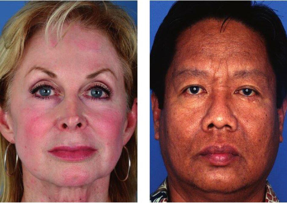Hình 4.1: Bệnh nhân thuộc màu da trắng nguyên bản(sáng) Hình 4.2: Bệnh nhân thuộc loại màu da gốc Châu Á
