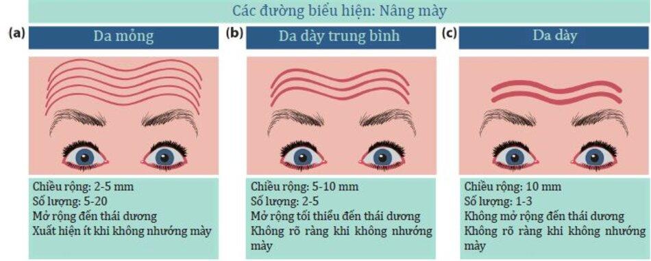 Hình 4.18: Ảnh hưởng của độ dày da lên các đường biểu hiện của bệnh nhân khi nâng cao lông mày do co cơ trán