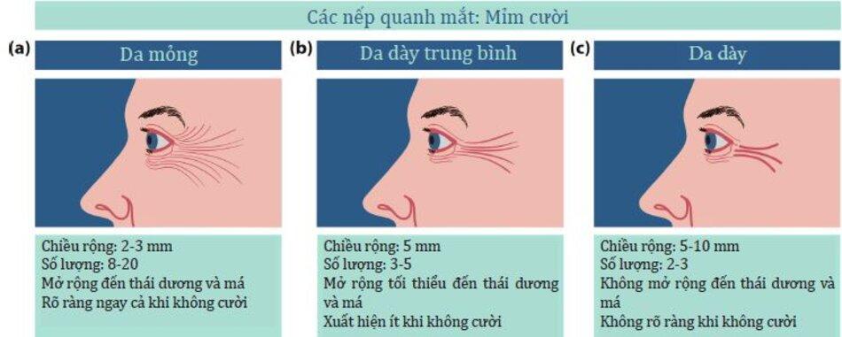 Hình 4.19:Ảnh hưởng của độ dày da lên các đường bieuerh iện ở các vùng quanh mắt của bệnh nhân trong khi cười