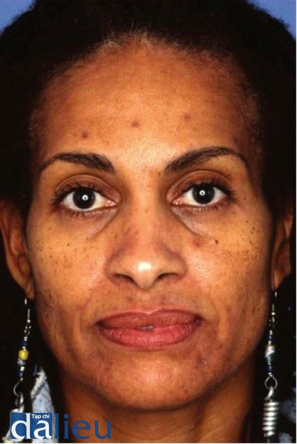 Hình 4.13:Bệnh nhân da dày trung bình