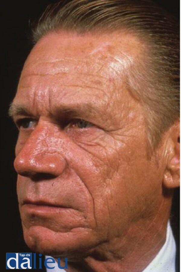 Hình 4.15: Bệnh nhân da rất dày (u mô thừa).Chú ý lỗ chân lông to ra,nếp nhăn tĩnh là chủ yếu