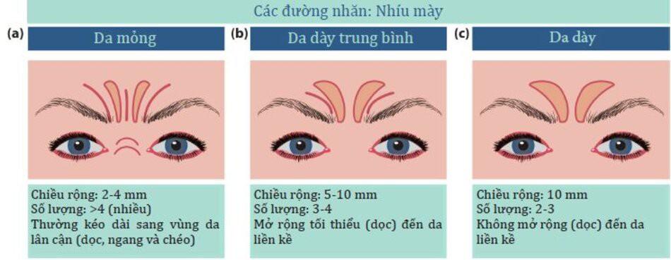 Hình 4.17:Ảnh hưởng của độ dày da đối với các đường biểu hiện của bệnh nhân trong khi nhíu mày:(a) mỏng;(b) trung bình;(c) dày