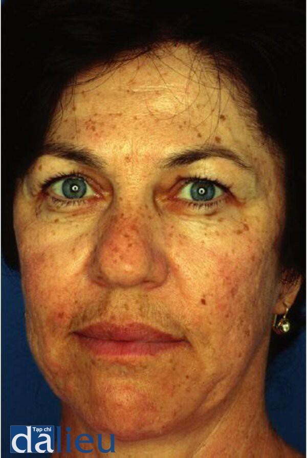 Hình 4.14:Bệnh nhân da dày