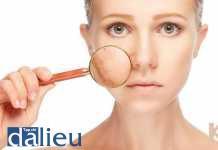 tăng sinh melanin và các chất điều hòa tính hiệu mới trong điều trị nám
