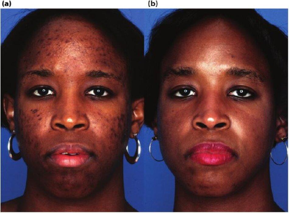 Bệnh nhân có mụn nang, tăng sắc tố và sự phục hồi qua 6 tháng