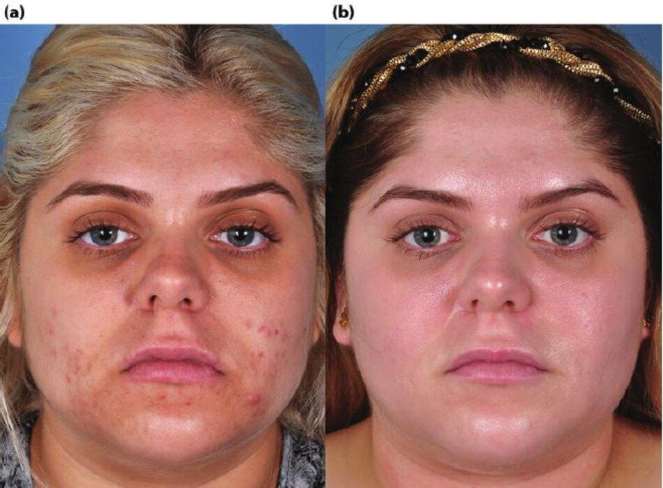 Bệnh nhân có mụn nang trước và sau khi điều trị