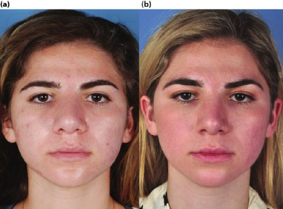 Bệnh nhân có mụn nang trước và sau khi điều trị 5 tháng