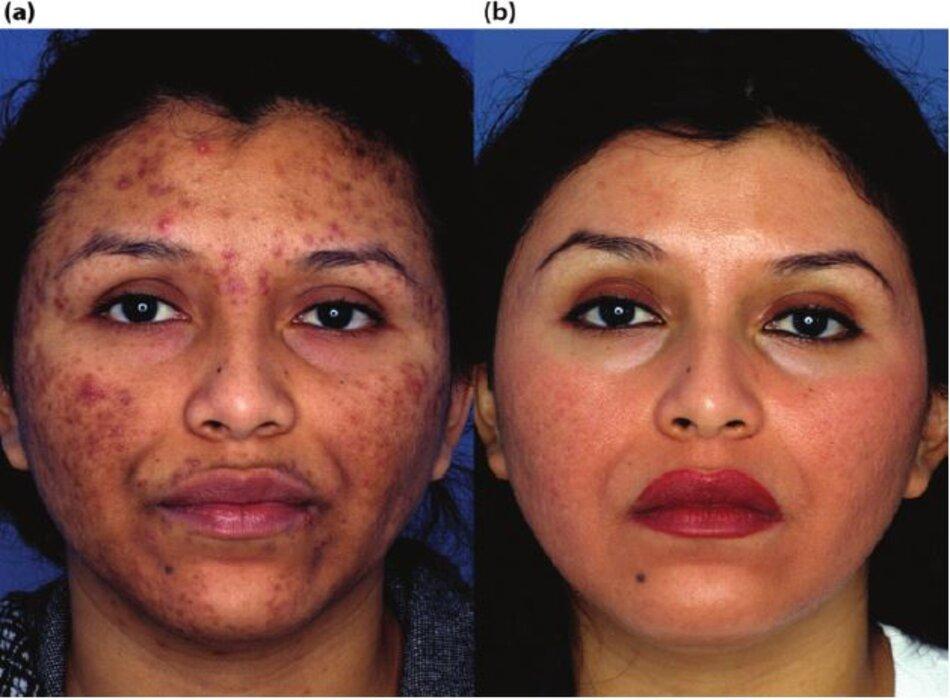 Bệnh nhân có mụn nang,tăng sắc tố sau viêm và sẹo mụn sau khi qua 5 tháng điều trị