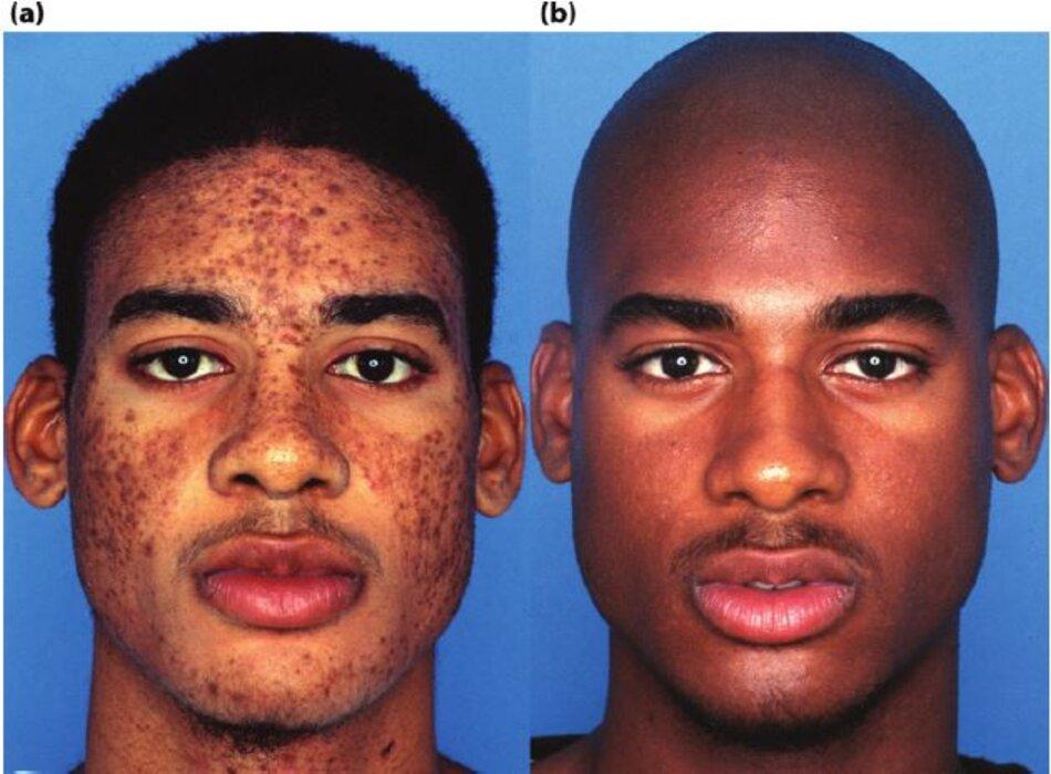 Sự phục hồi màu sắc da tự nhiên qua 6 tháng