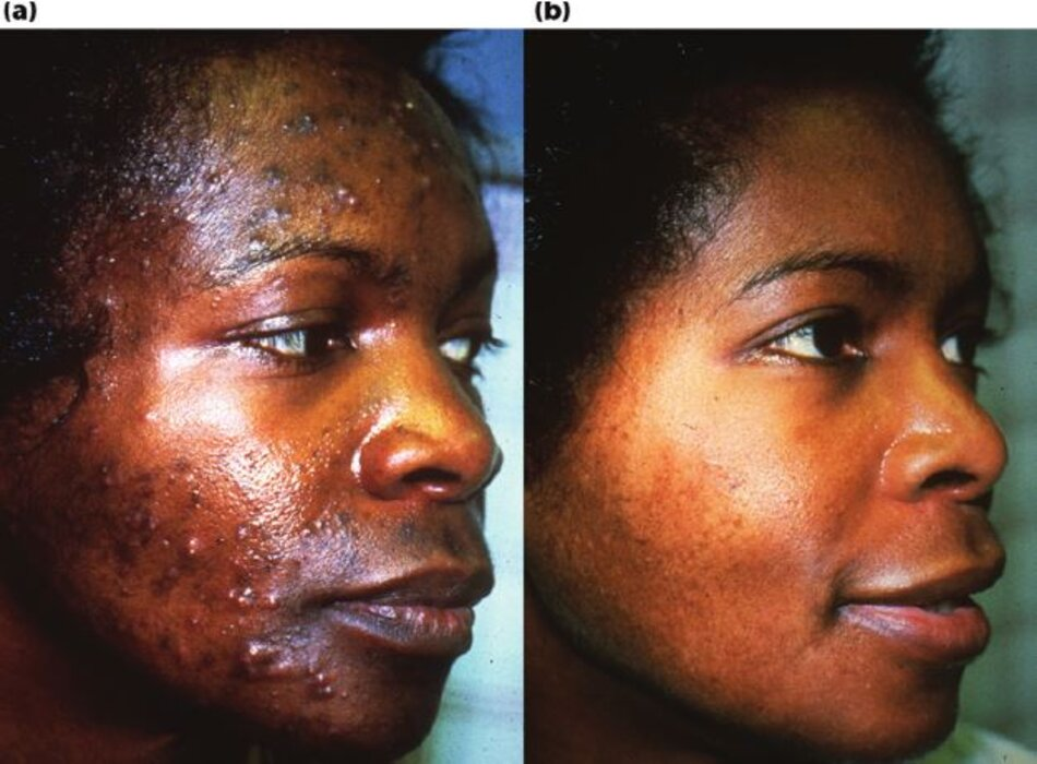 Sự phục hồi của da qua 5 tháng điều trị