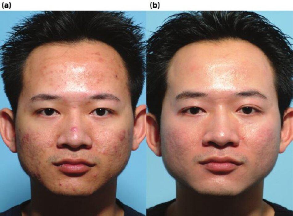 Bệnh nhân có mụn nang, tăng sắc tố sau viêm qua 5 tháng điều trị