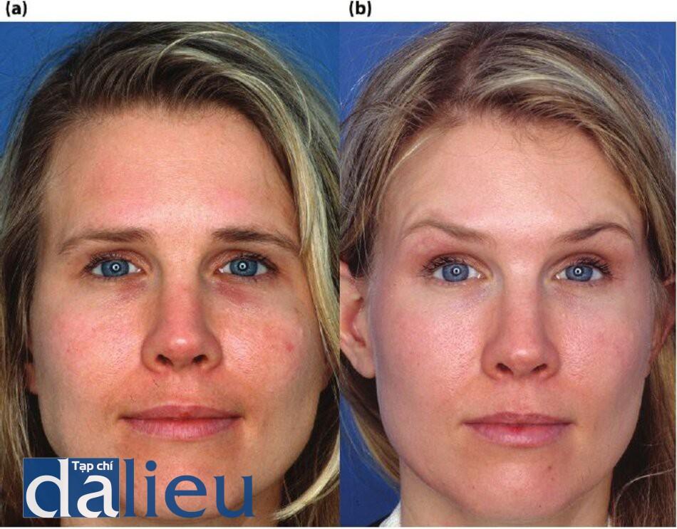 Hình 5.13 (a) Bệnh nhân có da trắng nhạt và dày trung bình. Cô được chẩn đoán là bị tổn thương da bởi ánh sáng, đổi màu và xỉn màu. (b) Một năm sau. Bệnh nhân đã được điều trị trong 5 tháng với một chương trình Phục hồi Sức khỏe Da không dựa trên HQ và có hai lằn thực hiện lột da kích thích zo bằng Retinol và một mũi tiêm Botox.