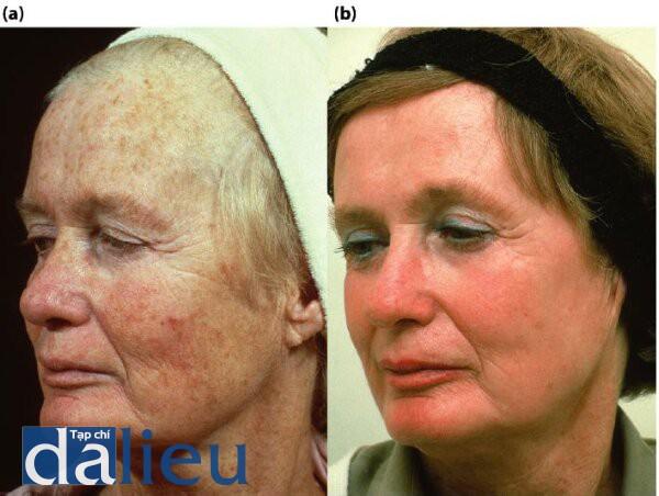 Hình 5.2: (a) trước điều trị.Bệnh nhân có da trắng nguyên bản,độ dày mỏng đến trung bình, và không dầu.(b) Sau điều trị.Bệnh nhân đã được điều trị với 6 tuần Phục hồi Sức Khỏe da sau đó là lột da ZO có kiểm soát đến lớp trung bình sâu tức thì.