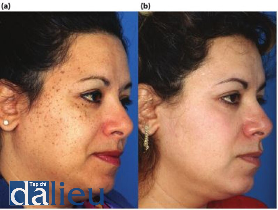 Hình 5.20 (a) Trước điều trị. Bệnh nhổn có da trắng lệch màu (trung bình), dày, và nhờn. Cô ấy được chẩn đoán là mắc bệnh dày sừng tiết bã (DON). (b) Một năm sau. Sau 6 tuần điều trị bằng phương pháp Phục hồi Sức khỏe Da dựa trên HQ, cô ấy đã trải qua quá trình hyfrecation DON và thực hiện Liệu trình lột da sâu có kiểm soát zo đến lớp hạ bì nhú cùng một buổi phẫu thuật. Tiếp theo là 3 tháng Phục hồi Sức khỏe Da dựa trên HQ.