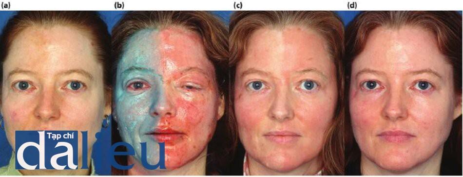 Hình 5.21 (a) Trước điều trị. Bệnh nhân có trắng nhạt, dày vừa và nhờn. Cô ấy được chẩn đoán là có da chảy xệ và nếp nhăn, (b) phía bên phải của khuôn mặt bệnh nhân được điều trị bỏng Lột da sâu có kiểm soát zo vá phần bên trái điều trị bằng laser phân đoạn C02. (c) Một tháng sau điều trị. Nhận thấy độ căng lớn hơn và ít ban đỏ hơn ở bên mặt điều trị bằng lột da so với bên điều trị laser, (d) ba tháng sau đó. Bệnh nhân đang được điều trị bằng phương pháp Phục hồi Sức khỏe Da không dựa trên HQ.