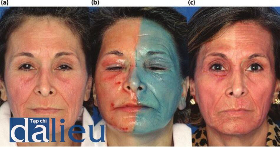 Hình 5.22 (a) Trước điều trị. Bệnh nhân có trắng lệch màu, dày trung bình, và dầu bình thường. Cô được chẩn đoán là có nếp nhăn và da chùng nhão, (b) ngay sau phẫu thuật. Bệnh nhân đã được điều trị bằng Phục hồi sức khỏe Da HQ 6 tuần, tiếp theo là điều trị bằng laser phân đoạn C02 ở bên phải khuôn mặt của cô ấy vồ lột da sâu có kiểm soát zo đến lớp trung bì sâu tức thì bền trái mặt của cô ấy. Mục đích là để so sánh các quá trình căng da được tạo ra riêng lẻ bởi hai quy trình khác nhau, (c) Bốn tháng sau quy tình. Thấy rằng da căng hơn ở phía mặt bên trái của bệnh nhân (bên điều trị bỏng lột sâu zo Kiểm soát)