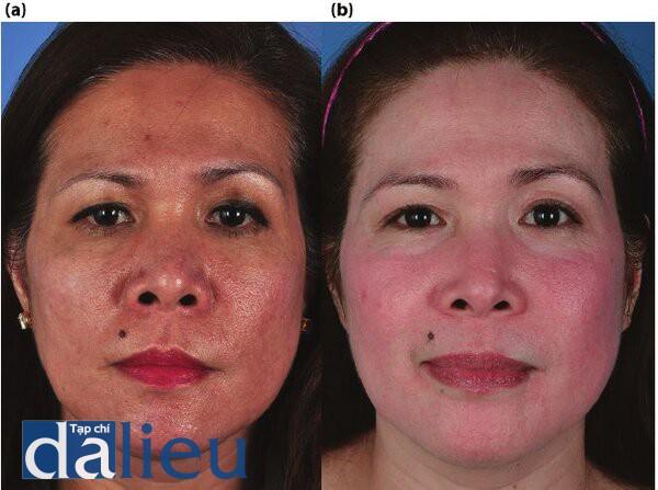 Hình 5.9. (a) Trước điều trị. Bệnh nhân có da da châu Á lệch màu, độ dày trung bình và nhờn. Có được chân đoán là bị mụn trứng cá, bệnh trứng cá đỏ, tổng sản tuyến bã nhờn và bất thường kết cấu nghiêm trọng do sẹo mụn. (b) Sau điều trị. Bệnh nhổn đồ được điều trị với 6 tuần phục hồi sức khỏe da dựa trên HQ tích cực, sau đó ỉa điều trị bằng laser phân đoạn C02. Tiếp theo là một đợt tháng dùng isotretinoin liều thấp (20mg /ngày) và Phục hồi Sức khỏe Da dựa trên HQ tích cực trong 6 tuần nữa.