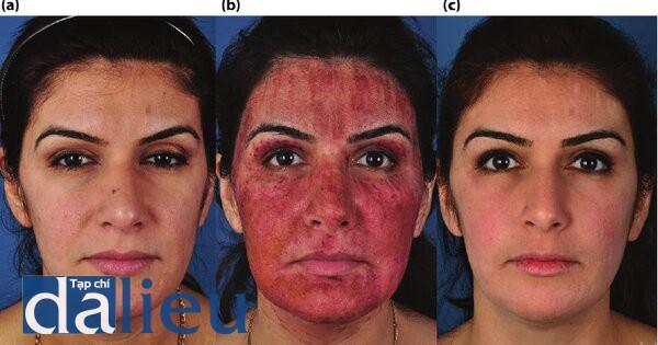Hình 5.10. (a) Trước điều trị. Bệnh nhân có da trắng lệch màu (tôi) và độ dày trung bình. Cô được chẩn đoán và bị mụn trứng cá dạng nang vờ có nhiều sẹo mụn. (b) Sáu ngày sau quy trình laser phán đoạn C02. Sau quy trình laser, cô ấy đờ có 18 tuần phục hồi sức khỏe da tích cực và sử dụng isotretinoin, 20g / ngày, (c) Sáu tháng sau điều trị.
