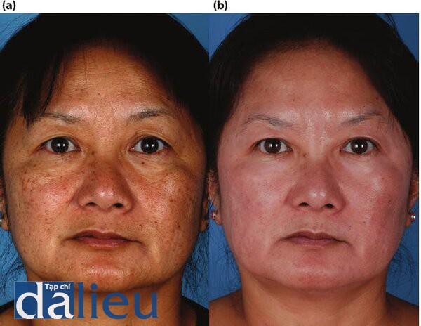 Hình 5.11. (a) Bệnh nhân có da Châu Á nguyên bàn và dày trung bình. Cô ấy được chân đoán là mắc bệnh tổn thương da do ánh nắng, đôi môi và bệnh dày sừng tiết bồ. (b) Một nồm sau điều trị. Bệnh nhân đổ trải qua quá trình Phục hồi Sức khỏe Da dựa trên HQ trong 6 tuần, tiếp theo là quá trình hyfrecation và Lột sâu có kiểm soát zo đền lớp trung bì sâu tức thì.