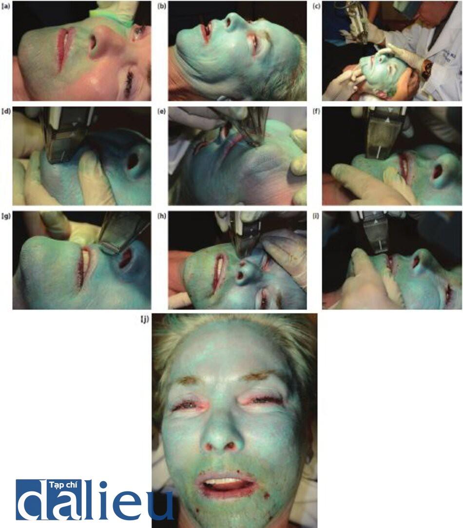 Hình 5.23 (a) sử dụng lột da sâu zo Kiểm soát bằng dung dịch (TCA cộng với lớp nên màu xanh) lên khuôn mặt một cách đông đêu. (b) Các điểm đặc trưng cụ thể cho quy trình lột da sâu có kiểm soát zo đã hoàn thành thành công đến lớp hạ bì trên mặt (ngoại trừ mí mắt đã được điều trị đến lớp hạ bì nhú). Chú ý đến lớp sương giá màu trắng, dạng tấm má không có lớp nền màu hồng bên dưới trên khuôn mặt (ngoại trừ mí mắt trên và dưới), (c, d) Ngay sau khi hoàn thành quá trình lột da sâu có kiểm soát zo, bệnh nhân sẽ được điều trị bằng laser phân đoạn C02. Đối với bệnh nhân này, các khu vực quanh miệng đang được điều trị bằng phương pháp kết hợp này để nhắm mục tiêu là các nếp nhăn không thể co giãn, do sự thoái hóa mô đàn hồi tiếp xúc ánh nắng mặt trời lâu. (e, f, g) Chú ý kết cấu không đêu của vùng da bị tổn thương ở cằm (sự kết hợp của tăng sản tuyến bã nhờn và chứng thoái hóa mô đàn hồi mặt trời), (thi) điểm cuối của phương pháp điều trị kết hợp này: xác định chính xác sự chảy máu để xóa hoàn toàn nếp nhăn bề mặt / bất thường kết cấu. Việc cạo lông vùng xung quanh, bao gồm đường viên của đường viền hàm dưới và đường viên cô trên, được thực hiện thông qua mật độ và năng lượng laser thấp hơn. (j) vẻ ngoài của khuôn mặt, ngay sau điều trị kết hợp (cả hai quá trình).