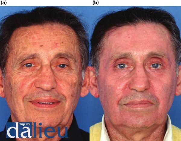 Hình 5.12. (a) Bệnh nhân có da trắng nhạt, dày trung bình và nhờn. Anh ta được chẩn đoán và bị tổn thương da do ánh sáng và dày sừng quang hóa. Anh ta từng bị u da ung thư tế bào đáy. (b) Một nồm sau điều trị. Bệnh nhân đã trải qua Phục hồi sức khỏe Da dựa trên HQ tích cực trong 5 tháng. Lột da sâu được kiểm soát zo đến lớp trung bì sâu tức thì được thực hiện sau 6 tuần phục hồi sức khỏe làn da (dưỡng da).