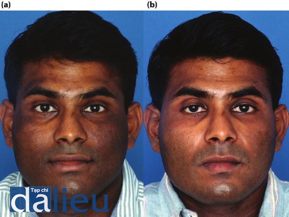 Hình 5.14 (a) Trước điều trị. Bệnh nhăn có da phức tạp (Ấn Độ), dày vờ dầu nhờn. Anh ta được chẩn đoán là mắc chứng tăng sắc tố sau tiêm, (bé) Sáu tháng sau. Bệnh nhân đã được điều trị với 3 tháng phục hồi sức khỏe da dựa trên HQ và isotretinoin, 20mg/ngày. Sau đó là 3 tháng chăm sóc Phục hồi da không dựa trên HQ và lột da 3 bước zo.