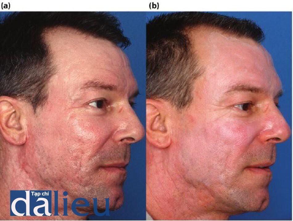 Hình 5.17 (a) Trước điều trị. Da của bệnh nhân được phân loại là trắng nguyên bản, dày và dầu nhờn. Anh ấy được chẩn đoán là có sẹo mụn (teo nặng, sẹo xơ và sẹo lăn), (b) Một năm sau. Các vết sẹo trên má và quai hàm của bệnh nhân đã được điều trị bằng cách tiêm 21-gauge, cách nhau 1 tháng, trong khi anh ta đang được điều trị bằng Phục hồi sức khỏe làn da HQ. Sáu tuần sau, anh ấy đã thực hiện Lột da sâu Thiết kế có độ sâu trung bình có kiểm soát, sau đó là phục hồi sức khỏe da dựa trên HQ trong 3 tháng.