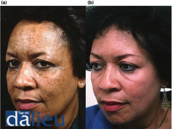 Hình 5.3: (a) Trước điều trị.Bệnh nhân có da đen lệch dày và nhờn .(b) Một năm sau điều trị .Bệnh nhân đã được điều trị với 6 tuần Phục Hồi Sức Khỏe dựa trên HQ, sau đó là Lột da sâu trung bình có kiểm soát được thiết kế ZO