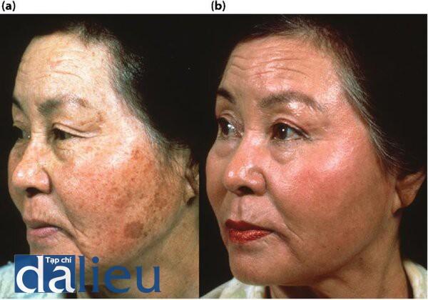 Hình 5.6 (a) Trước điều trị. Bệnh nhân có làn da người Châu Á (sáng) và dày. Cô ấy dô được chẩn đoán và bị tổn thương da ánh sáng và nốt đồi mồi trên má. (b) Một năm sau điều trị. Bệnh nhón đồ trải qua 6 tuần phục hồi sức khỏe da dựa trên HQ tích cực sau đó lột da sâu đo có kiểm soát đền lớp hạ bì nhú.