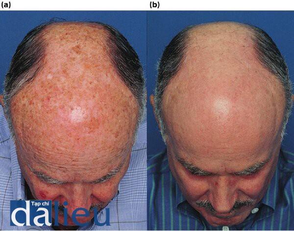 Hình 5.7 (a) Bệnh nhân có lớp da trắng lệch (bình thường) và dày. Anh ta được chân đoán là bị tổn thương da bởi ánh sáng nghiêm trọng, đôi môi, dày sừng quang hóa và ung thư biểu mô tế bào trên má phải, (b) Một năm sau điều trị. Bệnh nhân đồ trải qua 6 tuần Phục hồi sức khỏe da dựa trên HỌ và phục hồi DNA, ổn định biểu bì và kích thích, tiếp theo là lột da sâu có kiểm soát ZO đến lớp hạ bì nhú.
