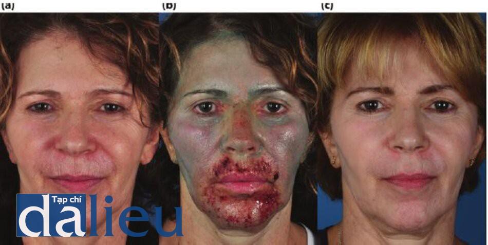 Hình 5.18 (a) Trước điều trị. Bệnh nhân có da trắng nguyên bản (bình thường), dày vừa phải và không nhờn. Cô ấy được chẩn đoán là có da chùng nhão và có nếp nhăn có thể co giãn vồ không thể co giãn xung quanh miệng, (bệnh nhân đã được điều trị trong 6 tuần với Điều trị ZOMD dựa trên HQ, tiếp theo là Lột da sâu có kiểm soát zo đến lớp trung bì sâu tức thì. Ngay sau đó là laser phân đoạn C02 quanh miệng trong cùng một phiên điều trị (phương pháp kết hợp). Bệnh nhân sau đó tiếp tục Chương trình ZOMD dựa trên HQ trong 3 tháng, (c) Sáu tháng sau.
