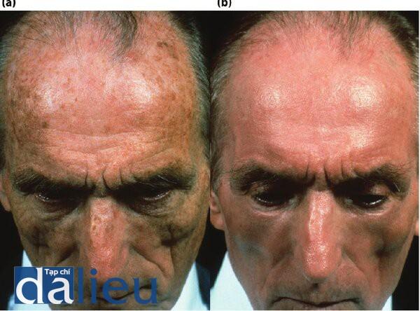 Hình 5.8 (a) Trước điều trị. Bệnh nhân có da trắng nguyên bàn, dày trung bình và không nhờn. Anh ta được chân đoán là mắc chứng bệnh tổn thương da do ánh sáng, dồi môi và dày sừng quang hóa. (b) Một năm sau điều trị. Bệnh nhón đờ được điều trị bằng Phục hồi sức khỏe Da HQ 5 tháng, tiếp theo là Lột da sâu có kiểm soát zo đến lớp trung bì sâu tức thì trên mặt và da dầu.