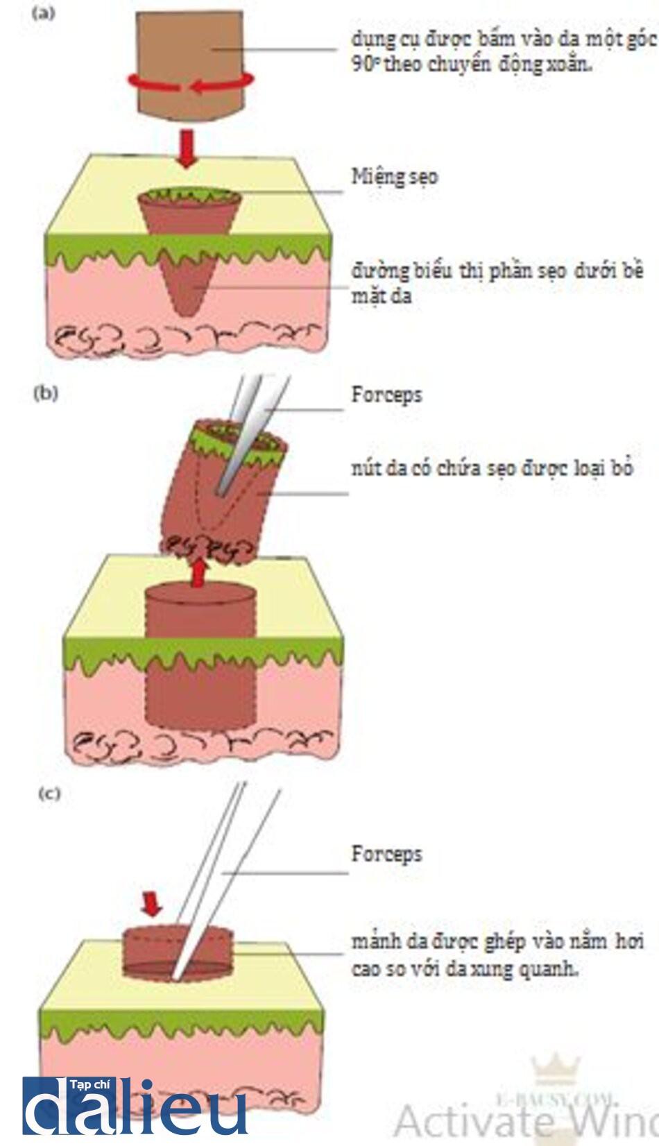 HÌNH 12.5 ghép da bằng dụng cụ bấm trong điều trị sẹo ice pick. (a) dụng cụ bấm được lựa chọn sẽ bao gọn sẹo và thành sẹo, dụng cụ này dược bấm ở góc 900 theo chuyển động xoắn đến lớp mô dưới da. (b) Tiếp theo, forcep sẽ được sử dụng để loại bỏ sẹo khỏi hố nhận. (c) Mảnh da ghép đủ độ dày, có kích thước hơi lớn hơn hố nhận được ghép vào bằng forceps. Bề mặt mảnh da ghép nên đặt hơi cao hơn so với da xung quanh.