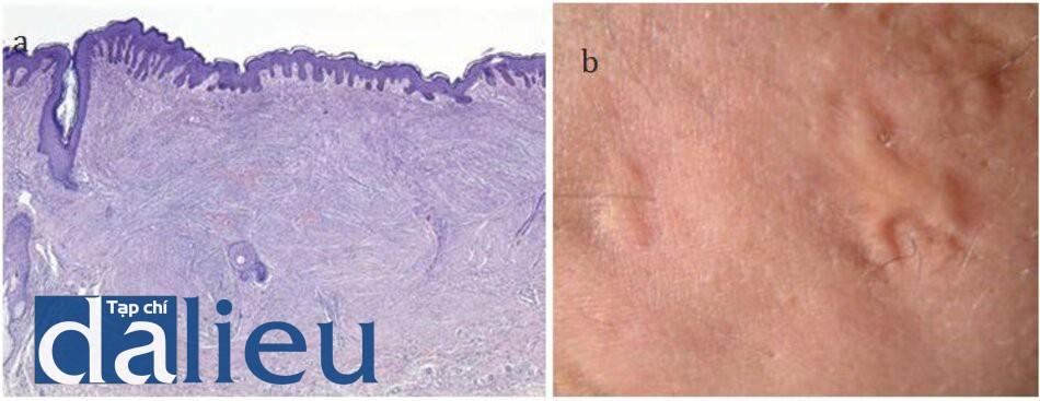 HÌNH 16.10 (a) đặc điểm lâm sàng và (b) mô học của sẹo lồi