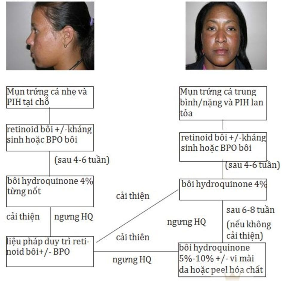 HÌNH 16.6 Phác đồ điều trị mụn trứng cá và tăng sắc tố sau viêm. BPO, benzoyl peroxide; HQ, hydroquinone (được sự cho phép của Callender VD. Cutis. 2005;76 (2 Suppl):19-23.