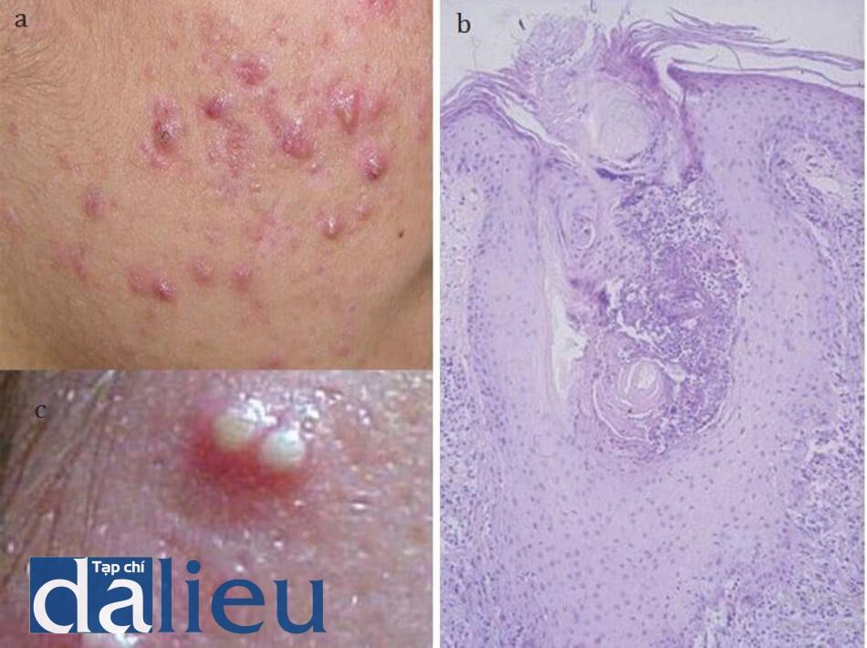 HÌNH 16.7 Đặc điểm (a) lâm sàng và (b) mô học của tổn thương trứng cá viêm. Quá trình viêm pha I (6-24h), có sự gia tăng số lượng tế bào bạch cầu trung tính đi vào nang lông (viêm nang lông mủ) và bạch cầu limpho ở quanh các đơn vị nang lông tuyến bã (viêm quanh lỗ chân lông). (c) sẹo trứng cá độ 3.