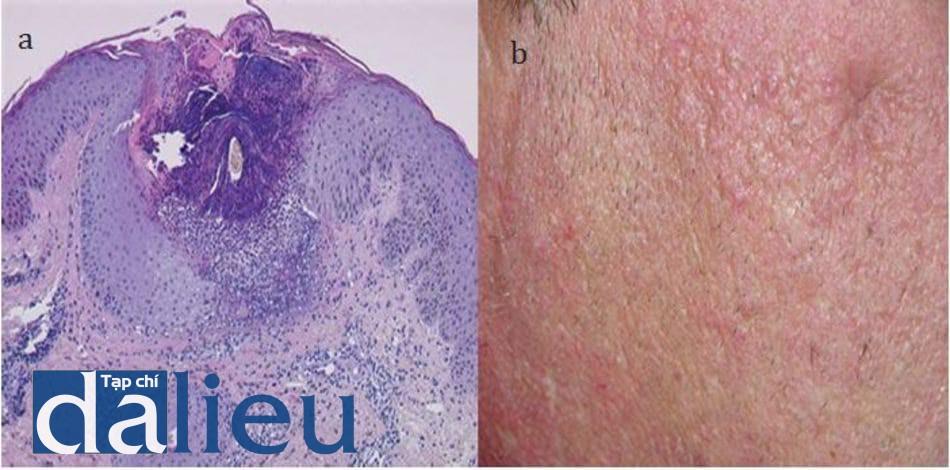 HÌNH 16.8 (a) pha II (48h). Áp xe được gây ra do vỡ phần dưới phễu nang lông đang bị yếu (viêm mủ quanh lỗ chân lông). (b) đặc điểm lâm sàng của sẹo lõm.