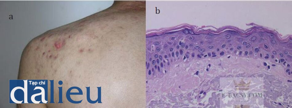 HÌNH 16.9 (a) đặc điểm lâm sàng và (b) mô học của sẹo phì đại