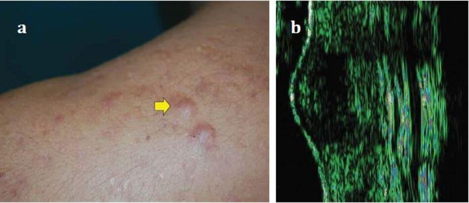 Hình 1.4 sẹo phì đại: biểu hiện trên (a) lâm sầng và (b) trên siêu âm.