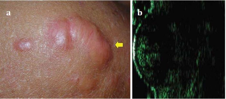 Hình 1.5 sẹo lồi: biểu hiện trên (a) lâm sầng và (b) trên siêu âm.