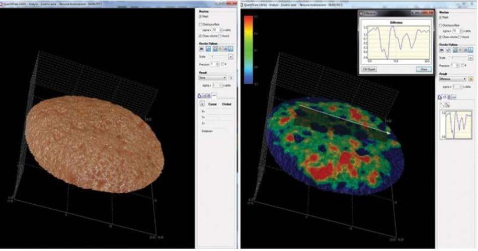 Hình 1.6 (a) hình ảnh 3D của một vùng bị sẹo lõm nặng trên mặt. (b) Cũng vùng da đó sau khi phân tích kỹ thuật số sẽ biểu hiện những vùng màu sắc khác nhau đại diện cho độ sâu khác nhau của sẹo từ màu đỏ (nông) cho đến màu xanh da trời (sâu)