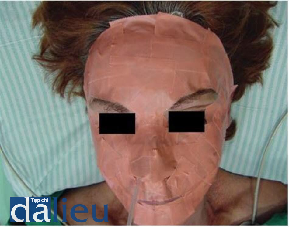 FIGURE 5.6 The face is covered with an impermeable tape mask for 24 hours.